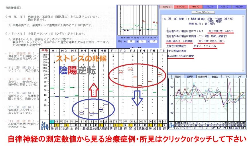 起立性調節障害 | 東京都多摩市の整体 鍼灸 ユナイテッド治療院 ...