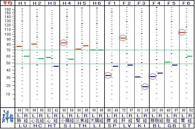 来院18回目の自律神経データ